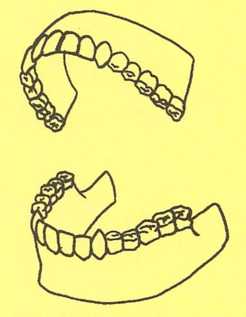 骸骨の描き方27